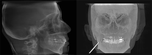 CTから抽出されたセファロ画像
