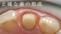 正確な歯の形成