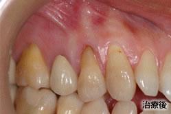 歯周形成外科