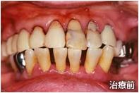 歯周病治療例